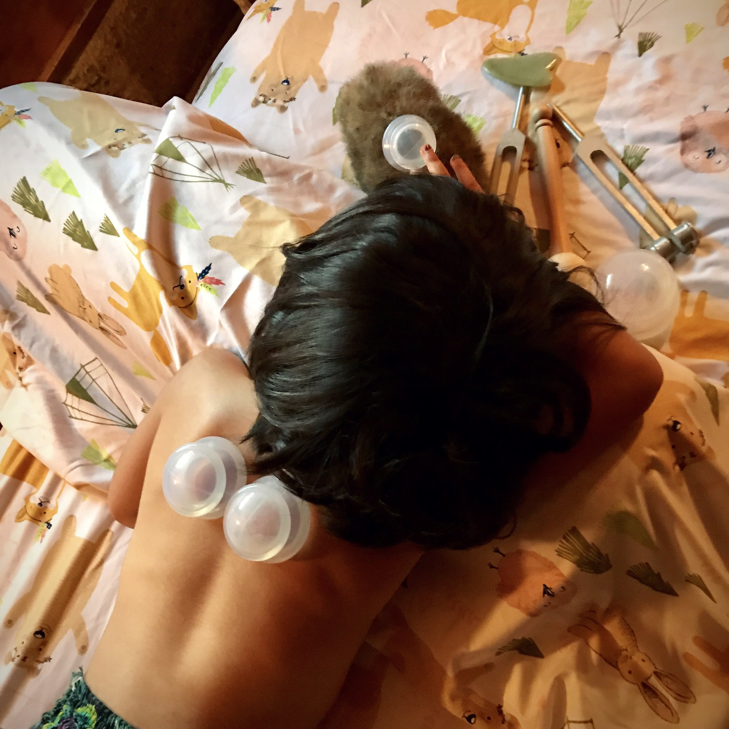 CUPPING FOR COUGH