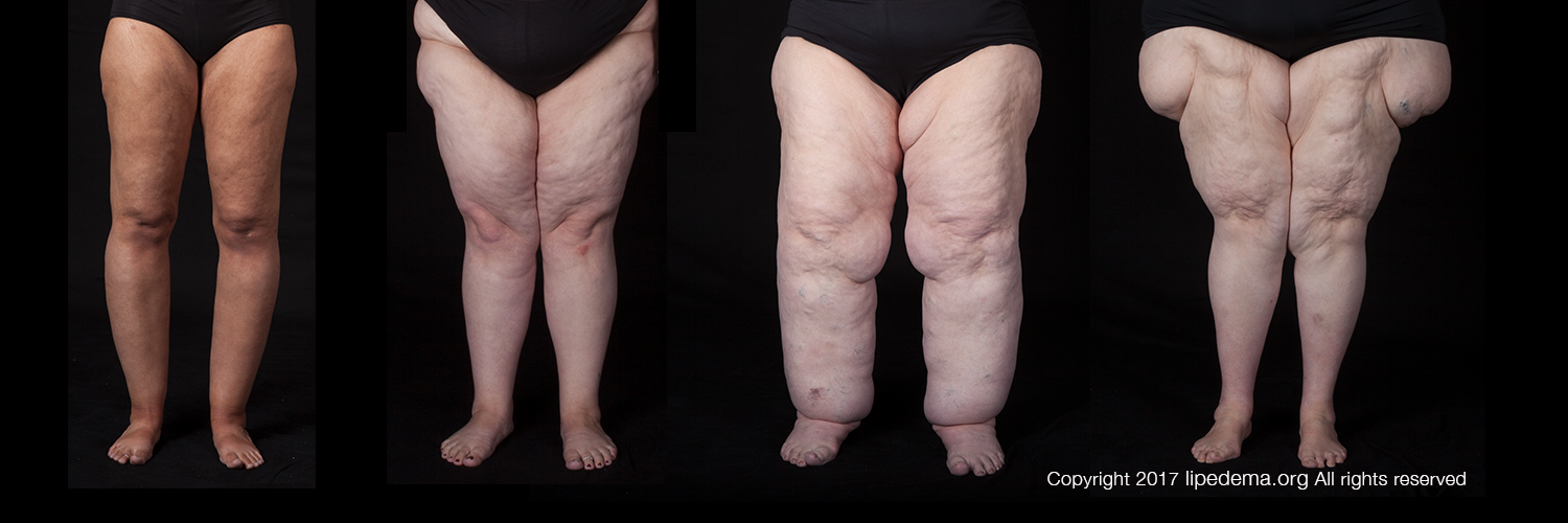 About Lipedema Lipedema Foundation