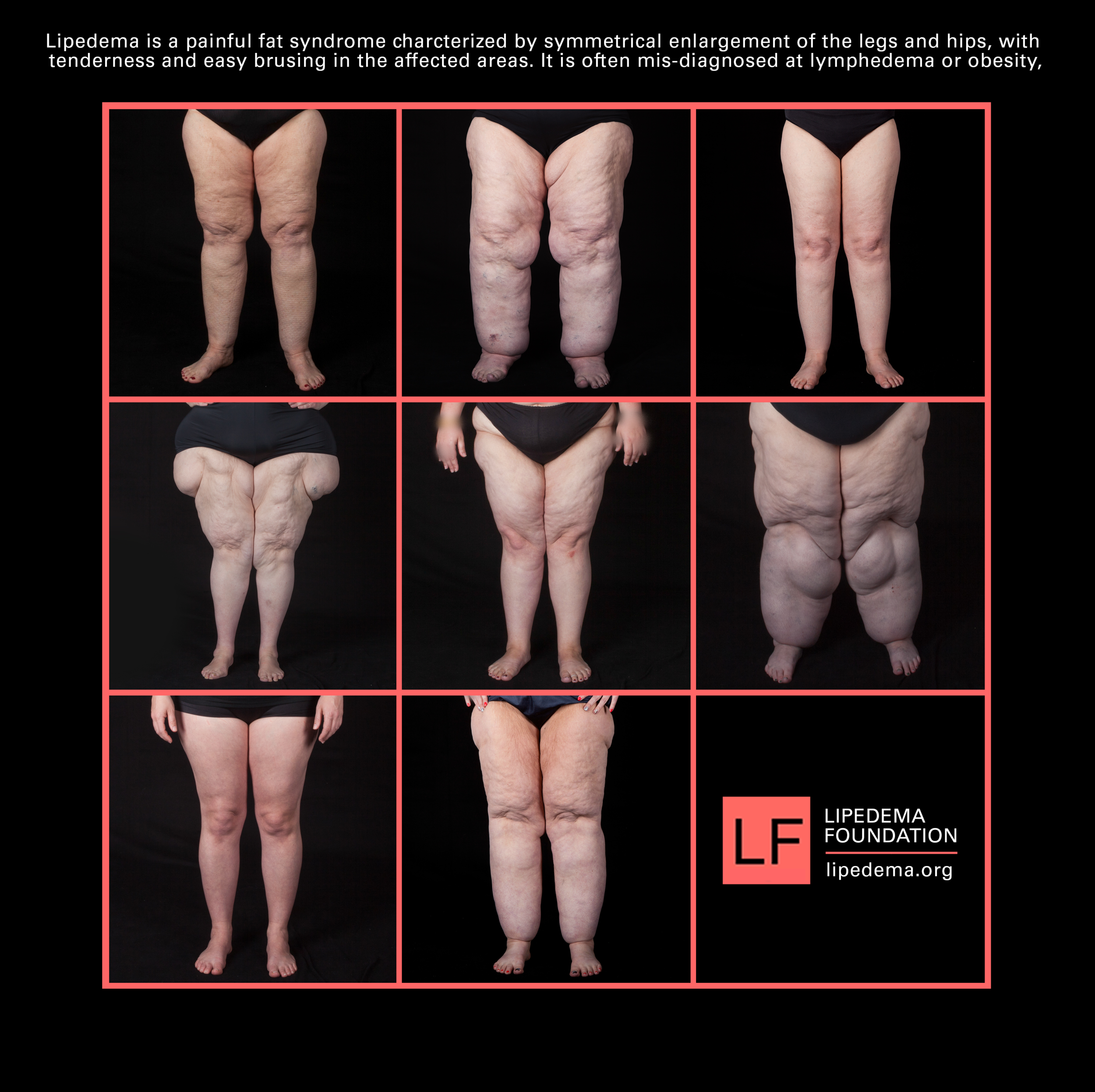 Legs_Symmetry_Collage_v1.png