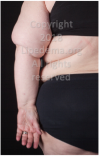 Fat buildup in upper arms (rear view). For more images go  here .