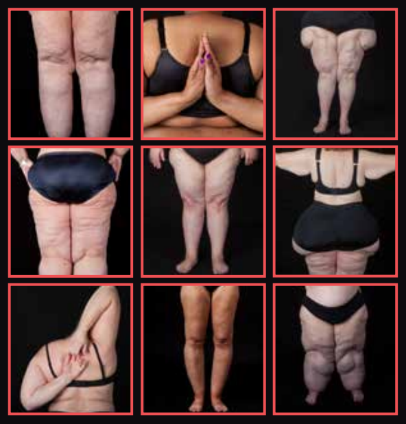Lipedema comes in many forms