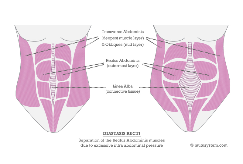 Diagram of Diastasis Recti Courtesy of MuTu Systems™