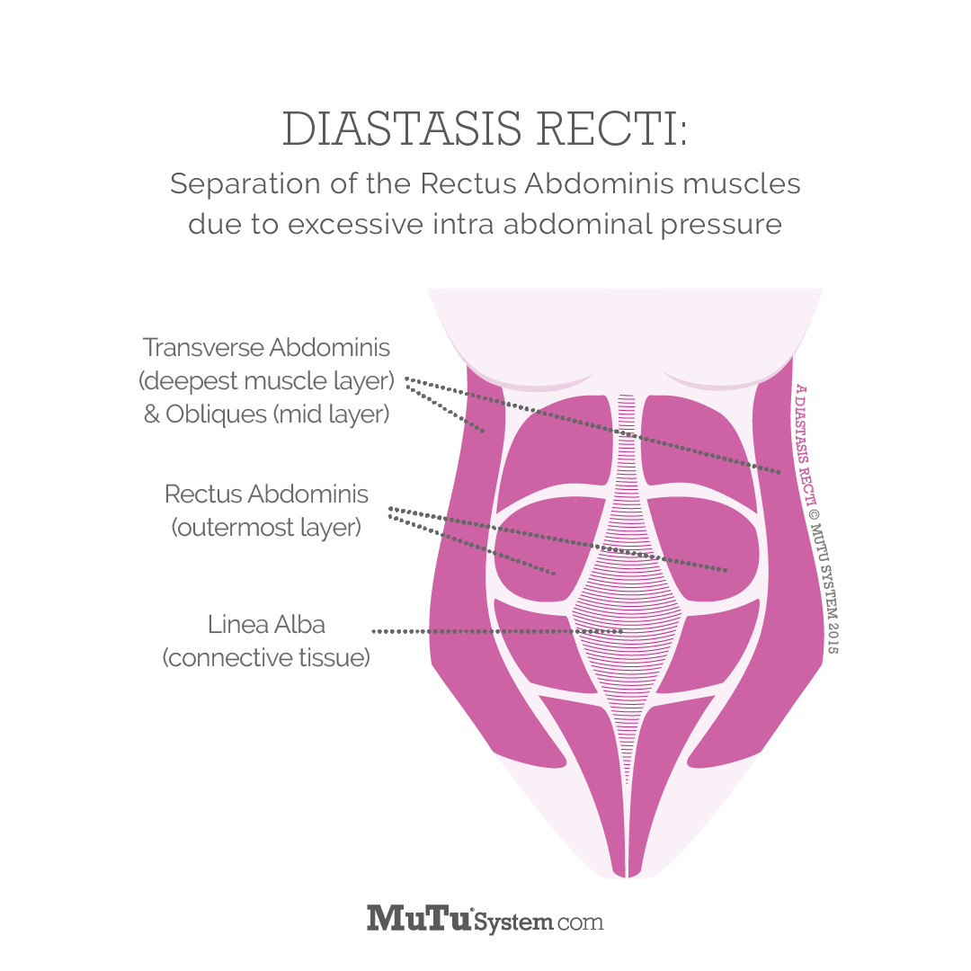 MuTu-System-What-Is-Diastasis-Recti-Square-Pain-Free-Clinic-Denver.png