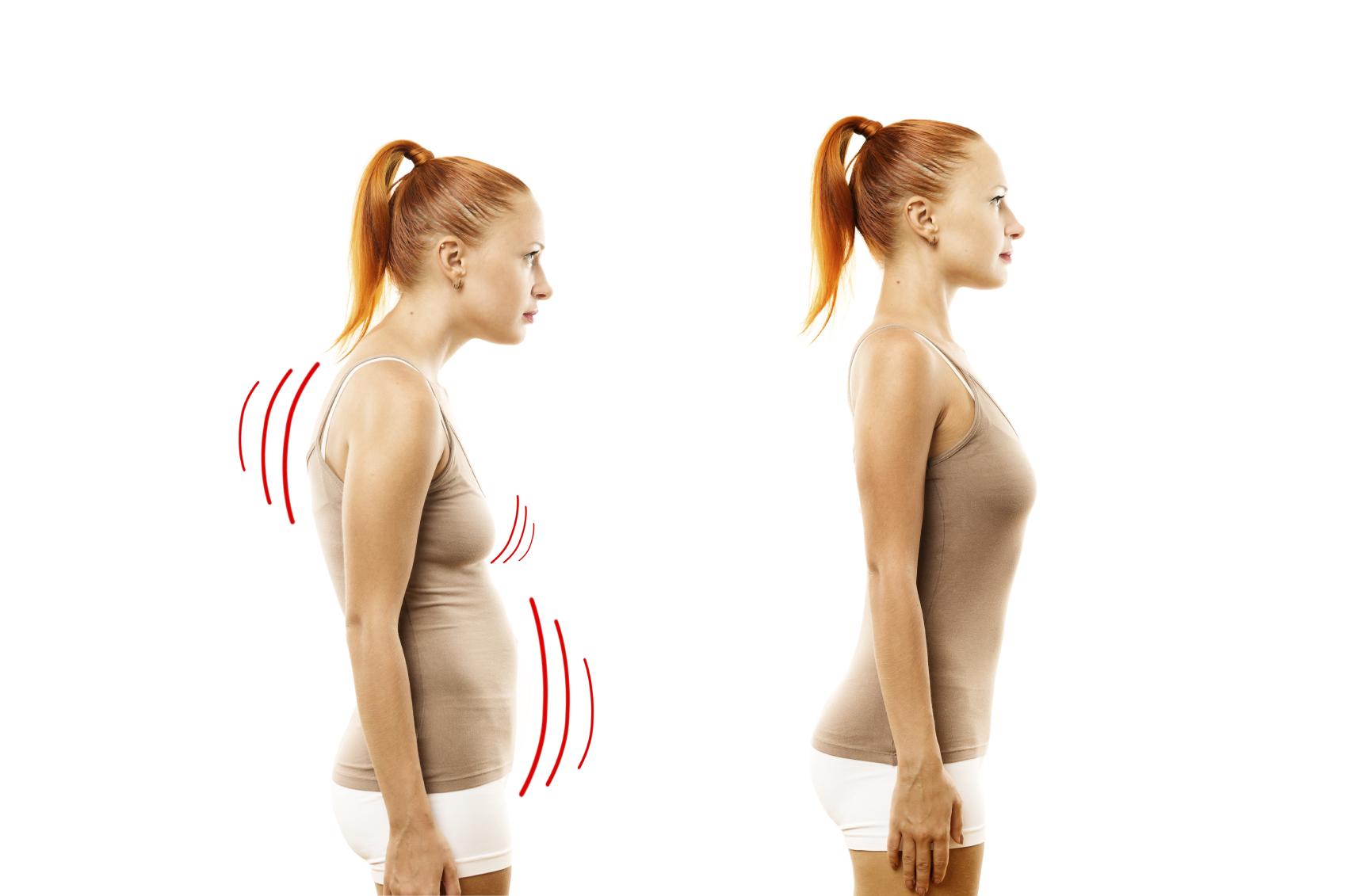 iStock good posture-bad posture.jpg