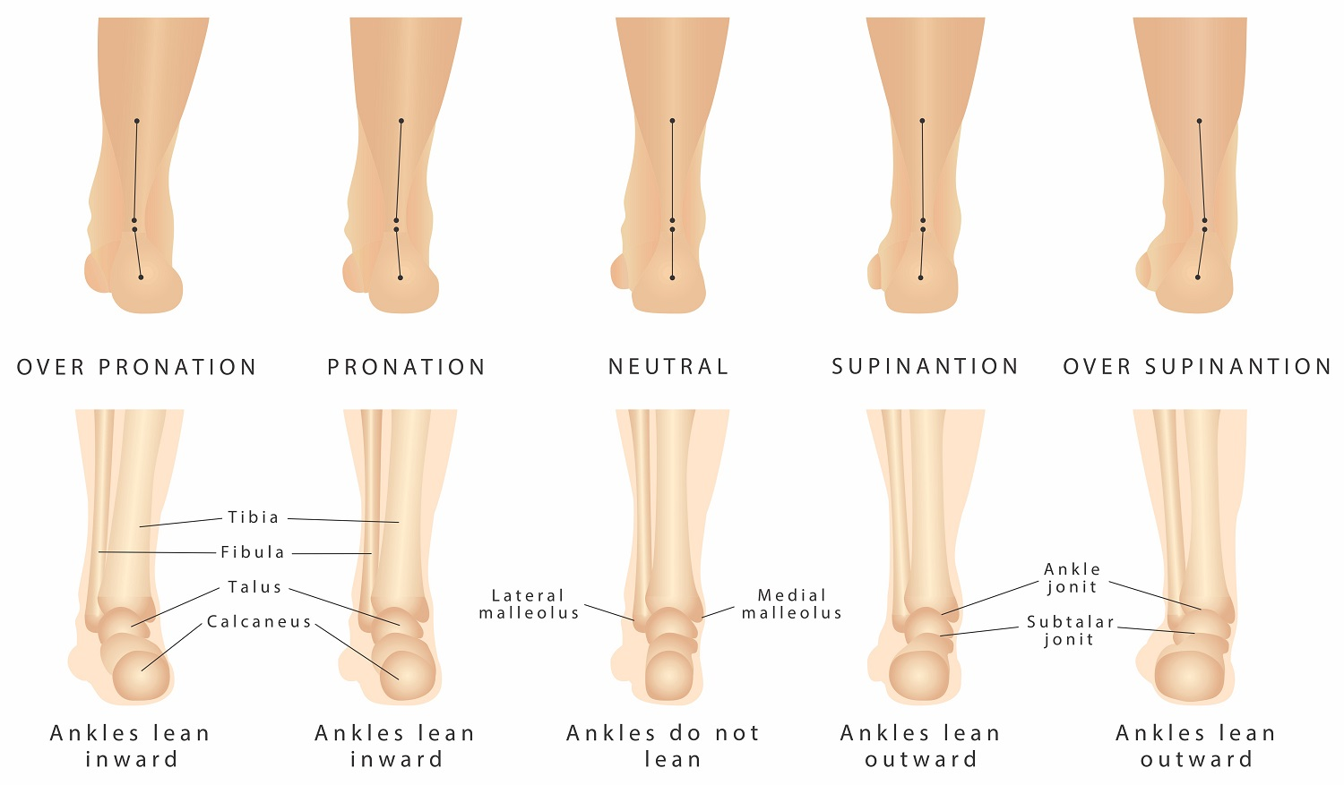 Orthotics can improve alignment of the foot by providing support. Orthotics can help with Pronation and Supination by creating a neautral foot.