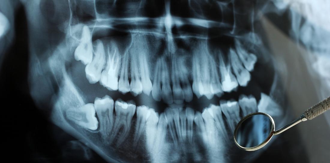 McNutt Pediatric Dentistry-xrays