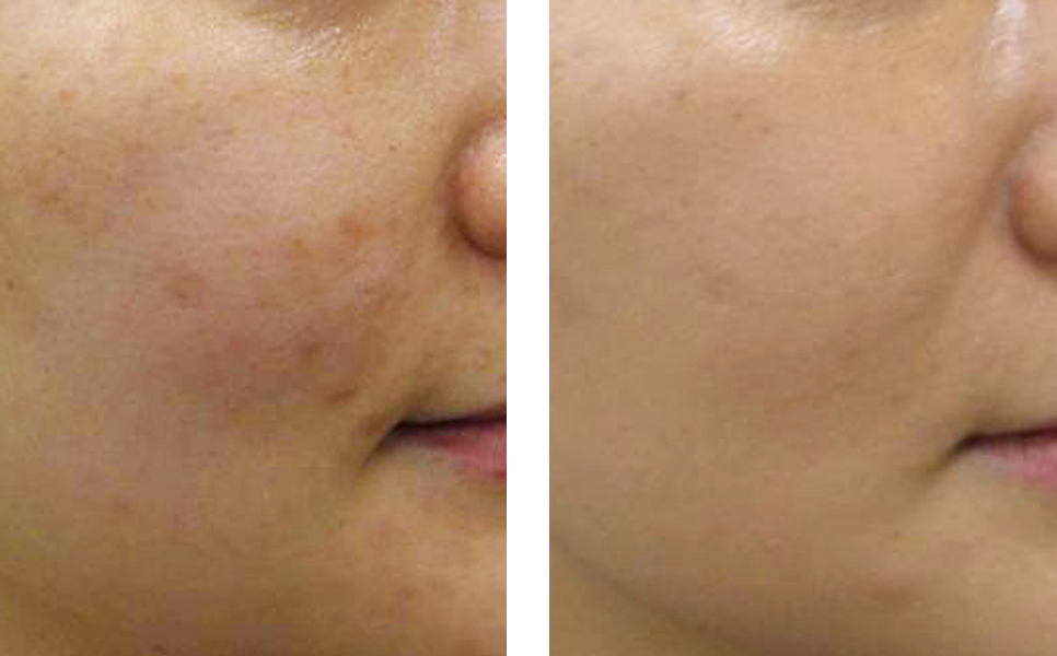 LEFT:   BEFORE   //     AFTER:    1 SQ (under the skin) PRP PROCEDURE, 6 WEEKS POST-TREATMENT