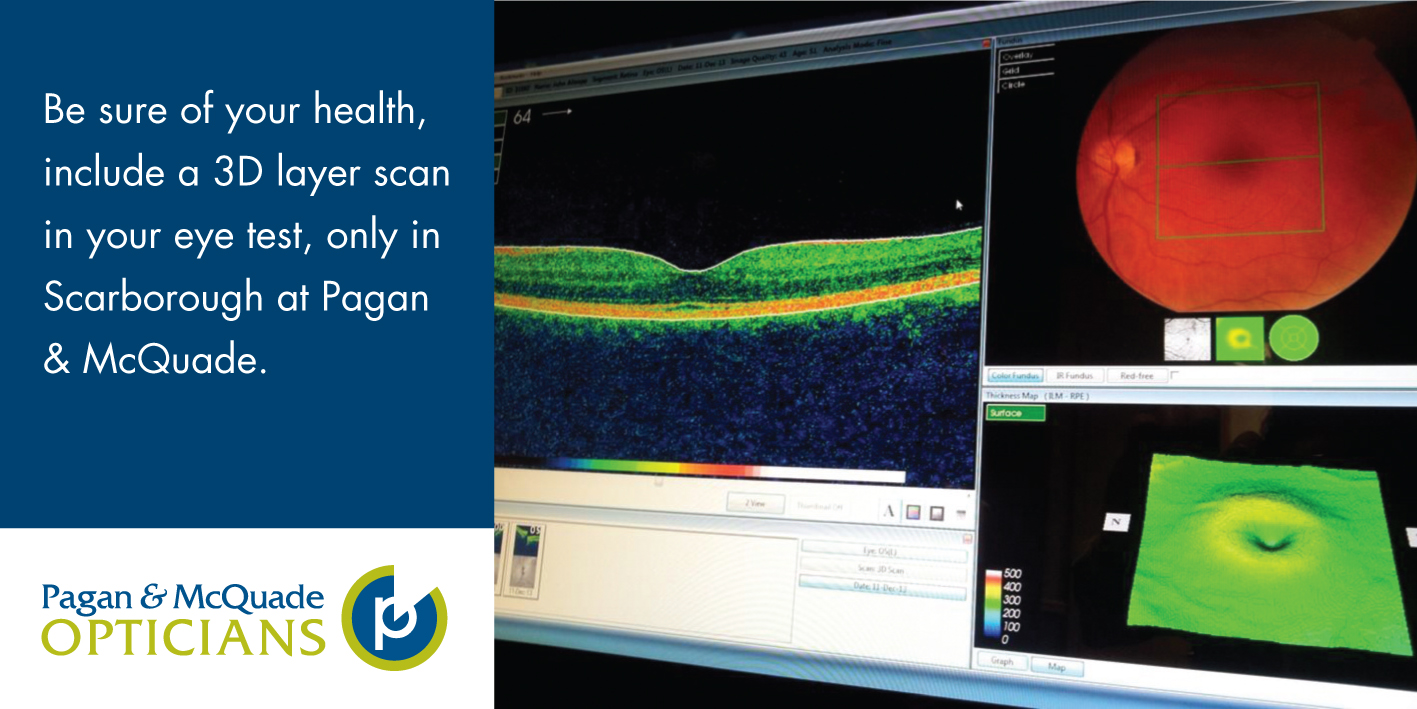 Optical Coherence Tomography, unique in the area