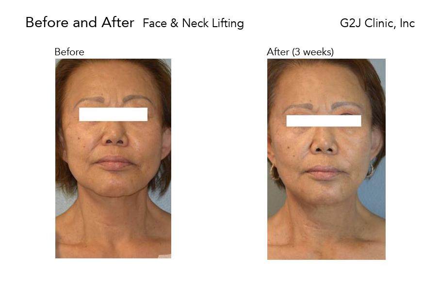thread-face-neck2.jpg