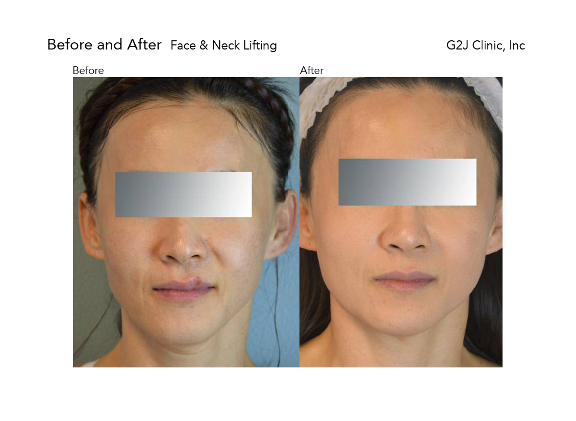 thread-face-neck.jpg