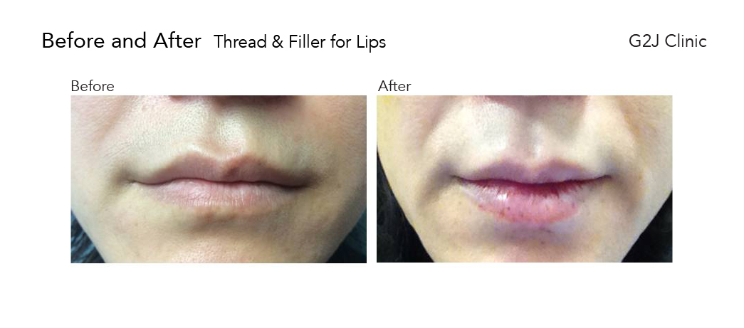thread-filler-lips-1.jpg