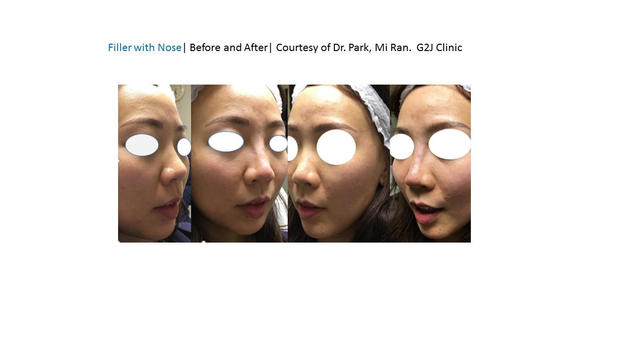 Filler to augment nose