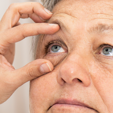 Picture of Eyelid Exam