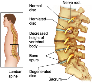 Spinal discs.jpg