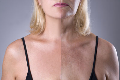 Before After Skin Tightening 400pix.jpg