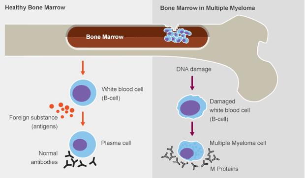 In healthy bone marrow, B-cells, a type of white blood cell, develop into antibody-producing plasma cells when foreign substances (antigens) enter the body. In multiple myeloma, DNA damage to a B-cell transforms the normal plasma cell into a multiple myeloma cell. The cancerous cell multiplies, leaving less space for normal blood cells in the bone marrow, and produces large quantities of M protein.