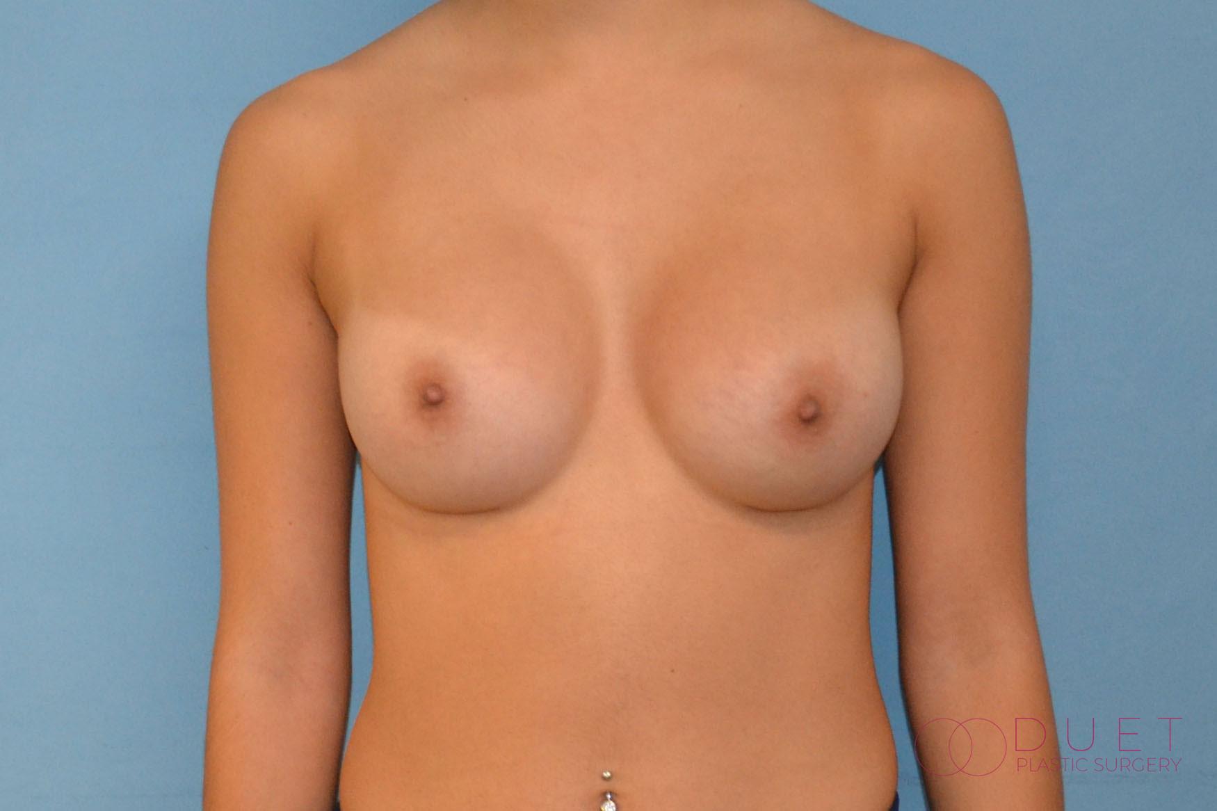 breast-augmentation-post-1-watermarked.jpg
