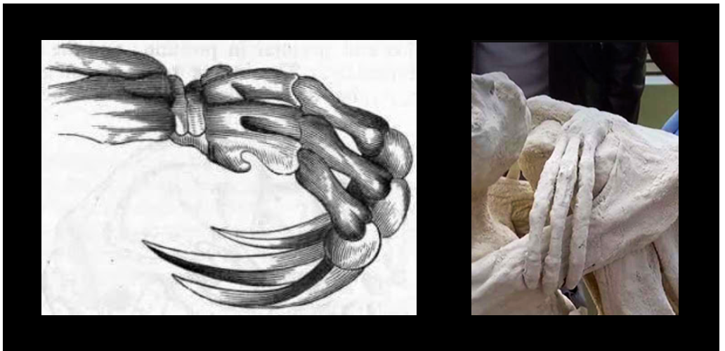 Fig 7: The mummies hand resembles the three appendages of a sloth's hand.