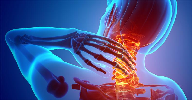 neck-pain-vertebrae.jpg