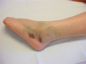 Grade 1-2 Lateral Ankle Sprain