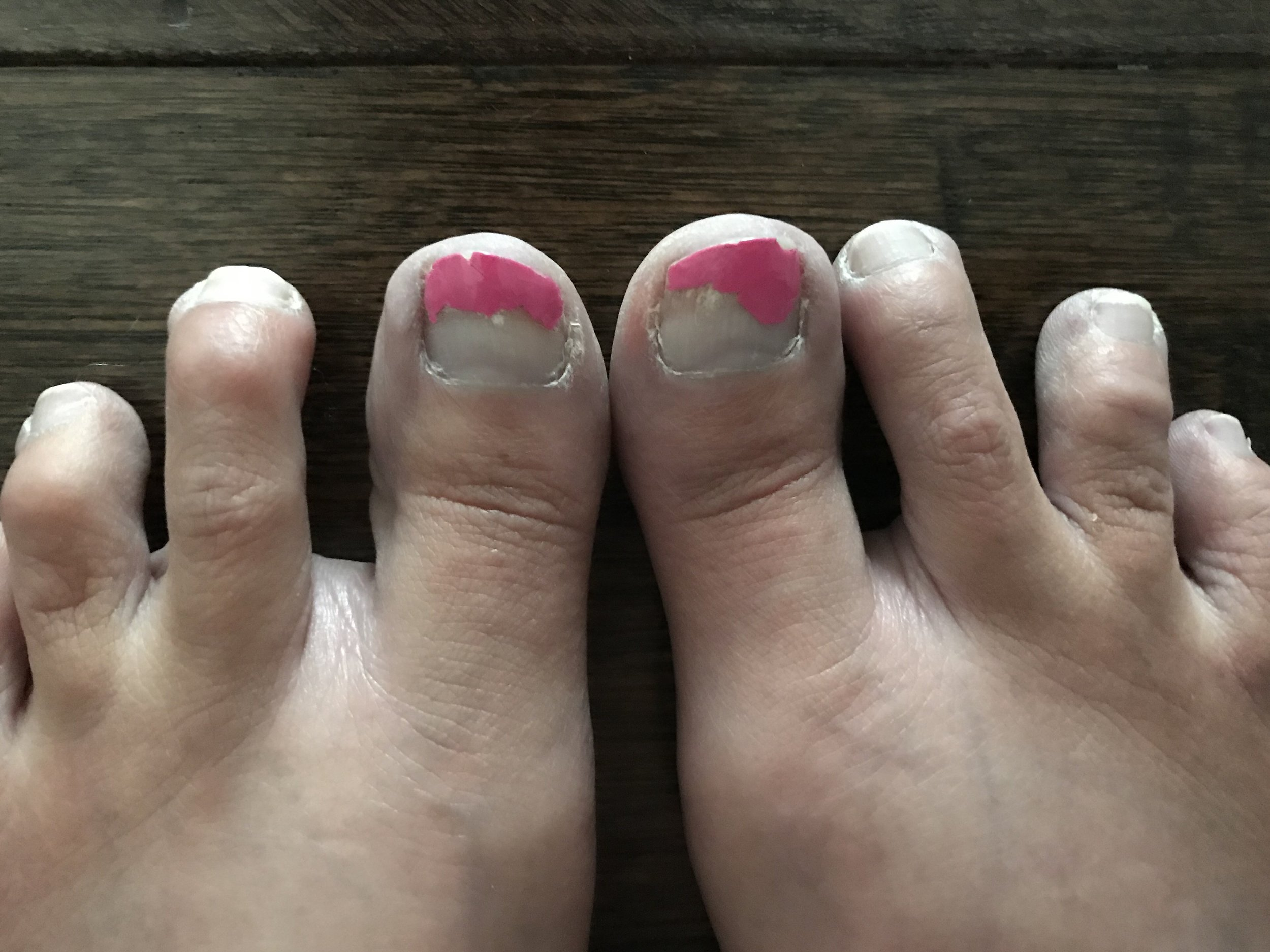 PINK TOES.png