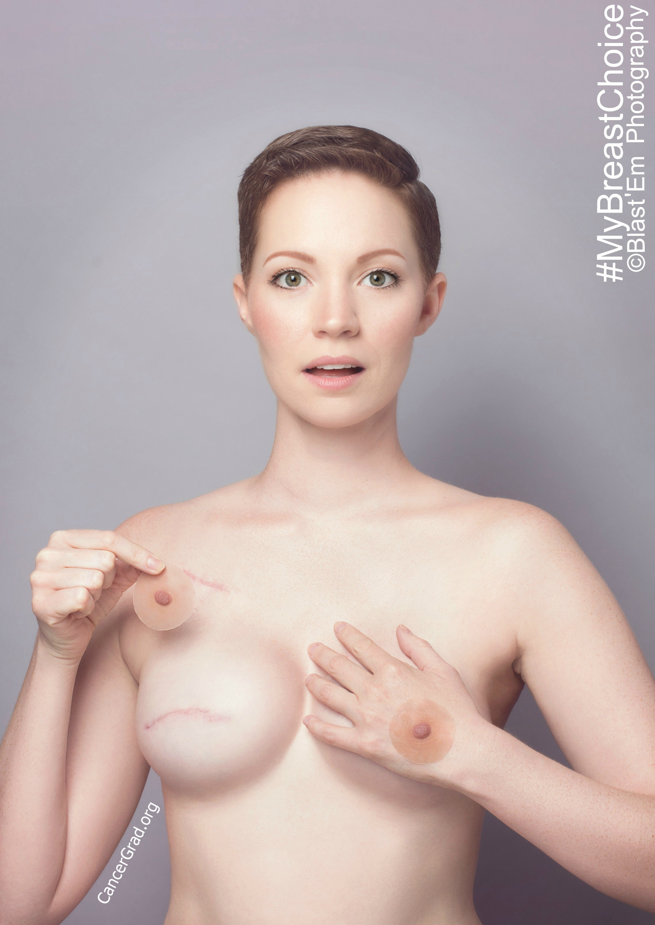 """""""#FreeTheNipples""""   Photographer- Blast 'Em    MUA & Hair- Aniela McGuinness      Model- Aniela McGuinness Prosthetic Nipples by Pink-Perfect  Five months post chemo and two months after my breast reconstruction."""