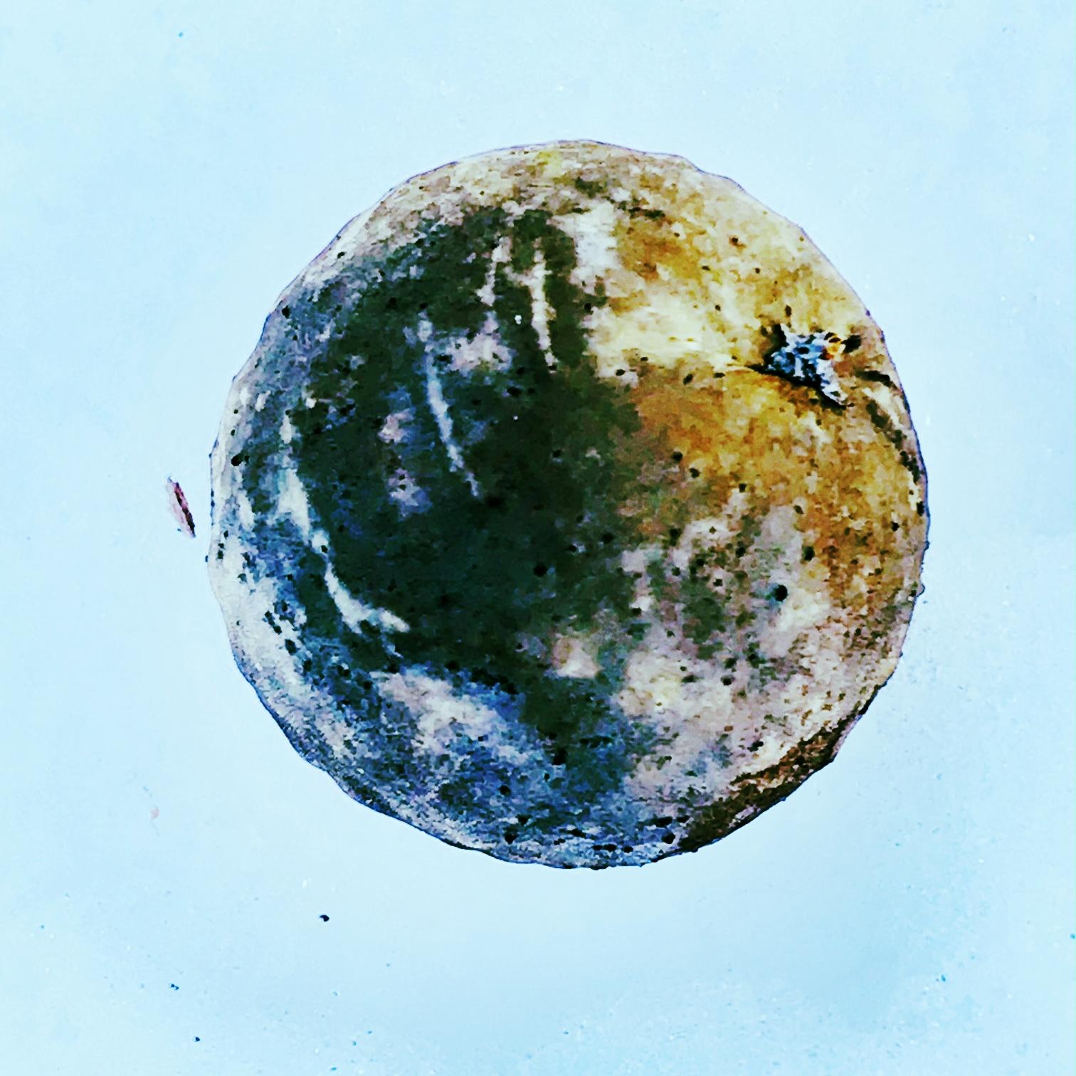 Gall, Like a Globe