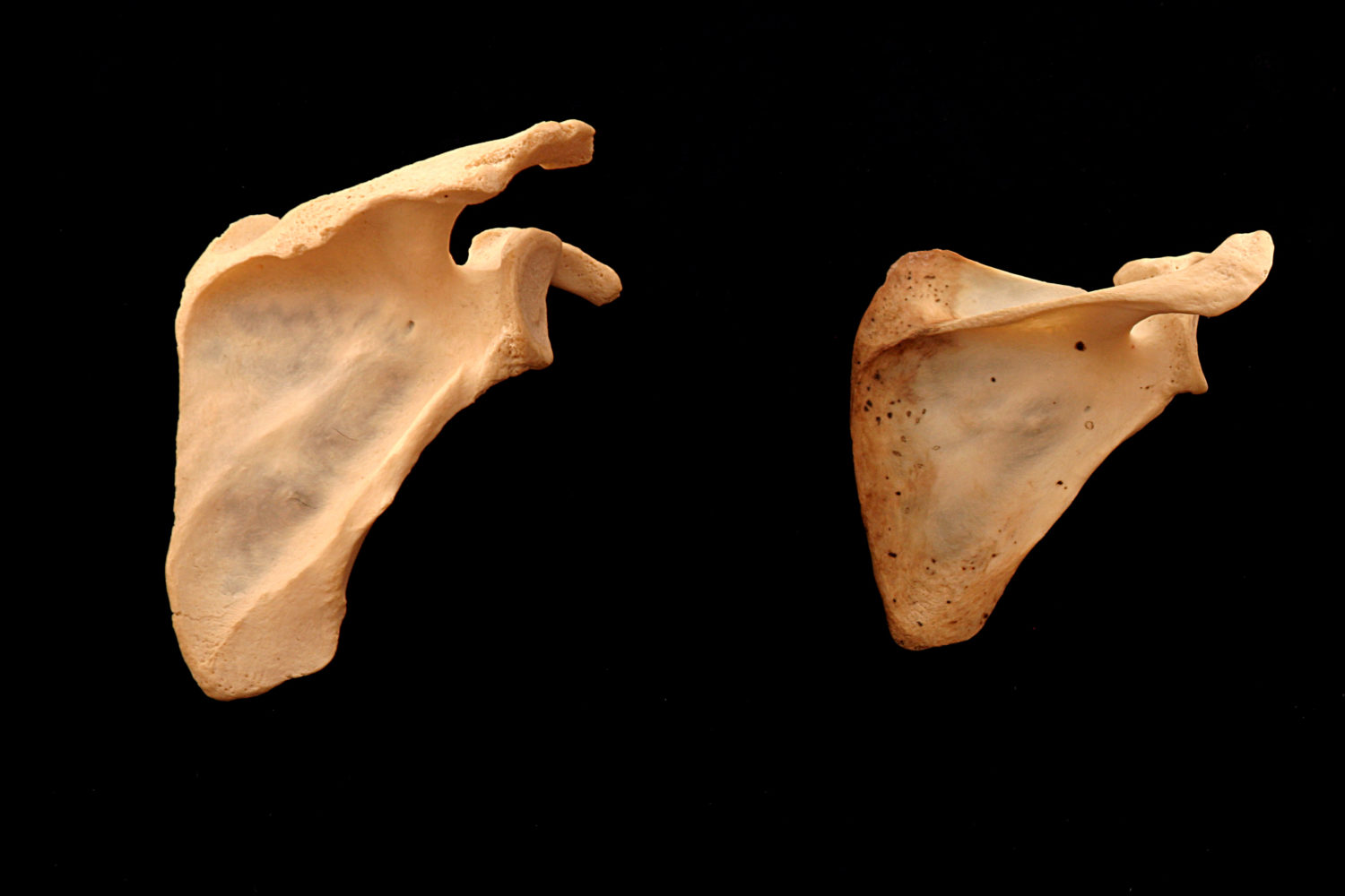 Two right scapula.  Left specimen could easily clasp hands behind the back. The acromion of the right specimen would block this movement..jpg