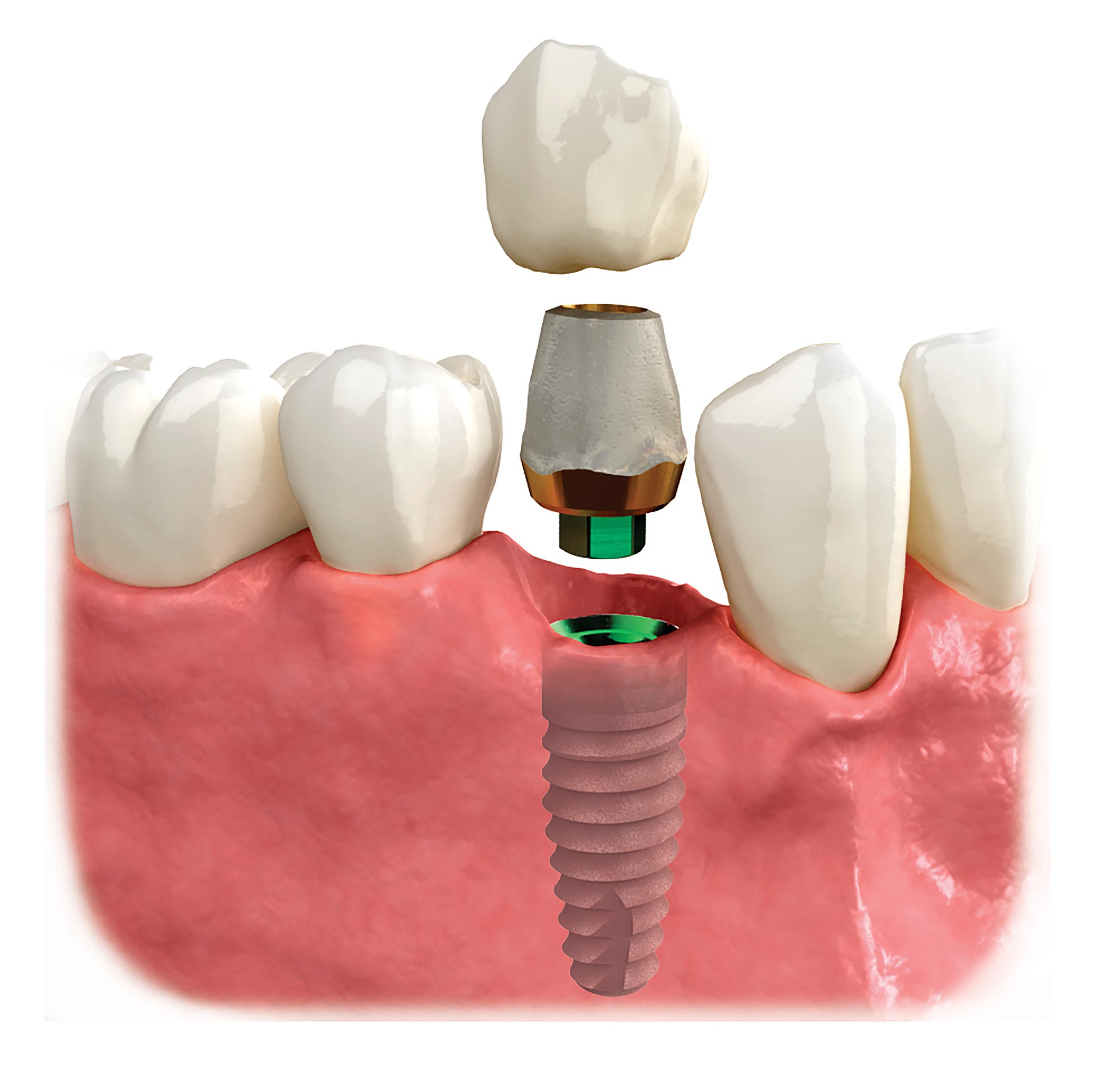 patient ed single implant2 copy.png