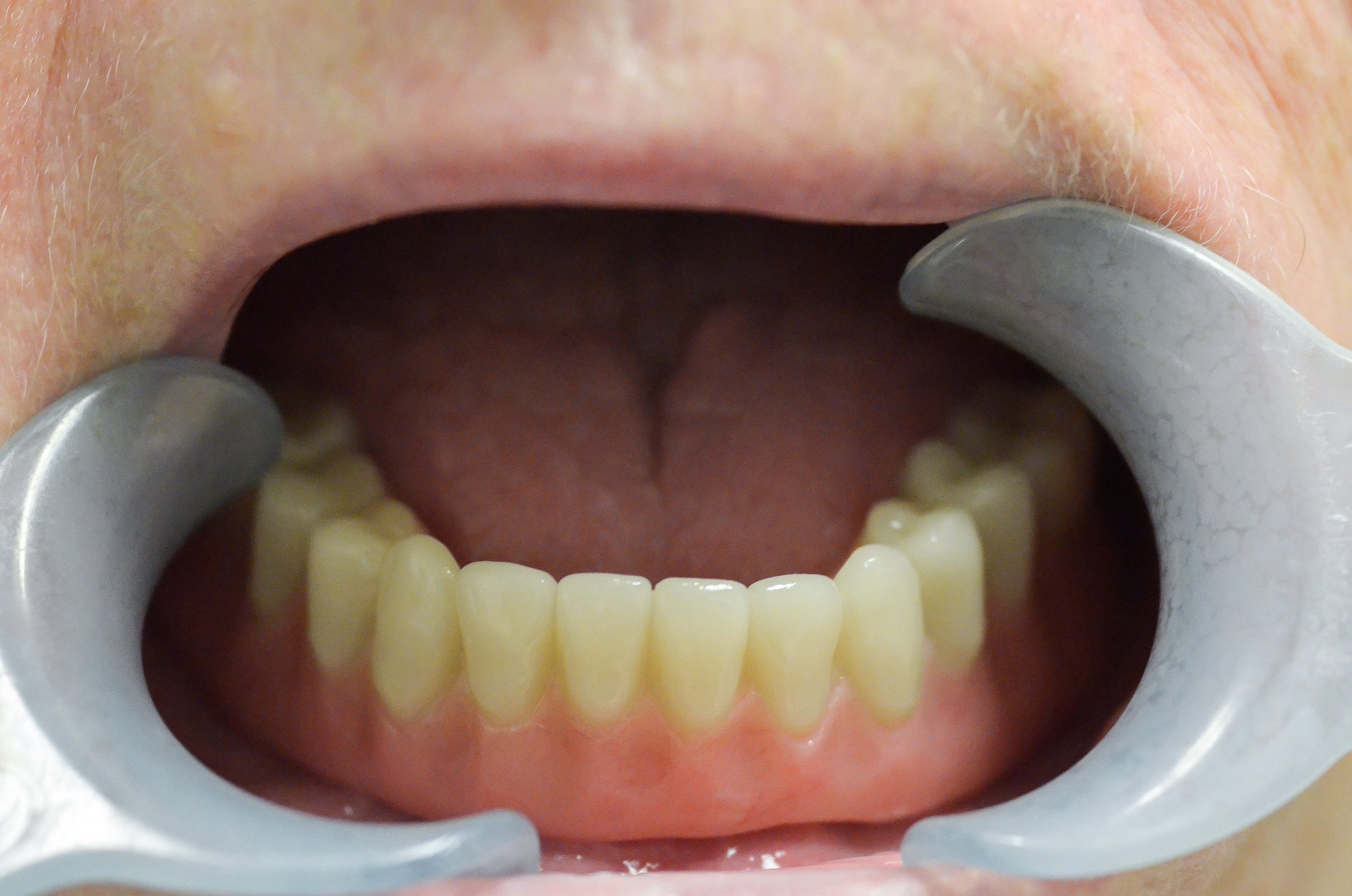 Lower Removable denture