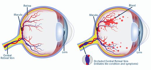 retinal-vascular-occlusion.jpg