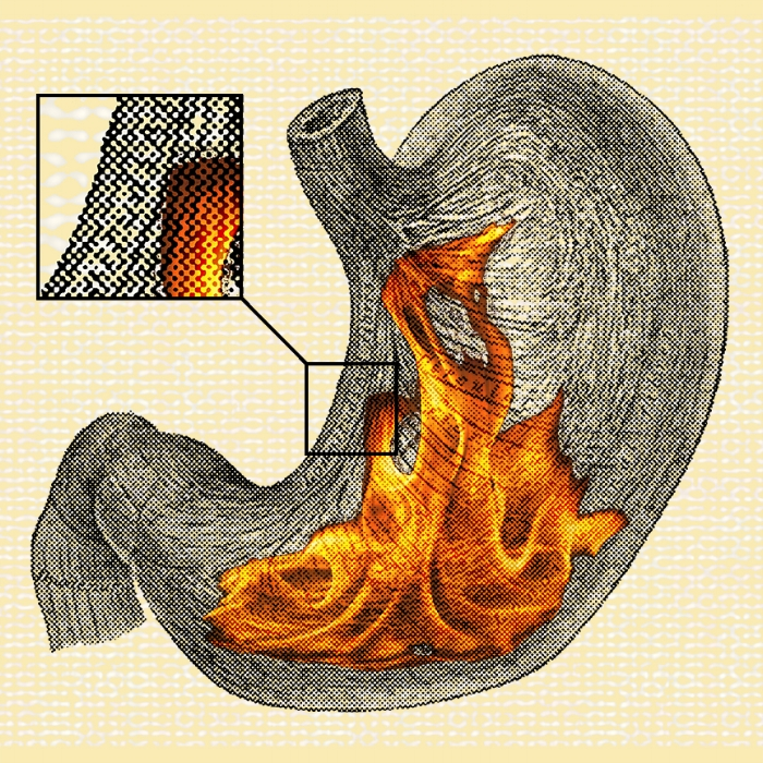 24/100: I got a fire in my belly.