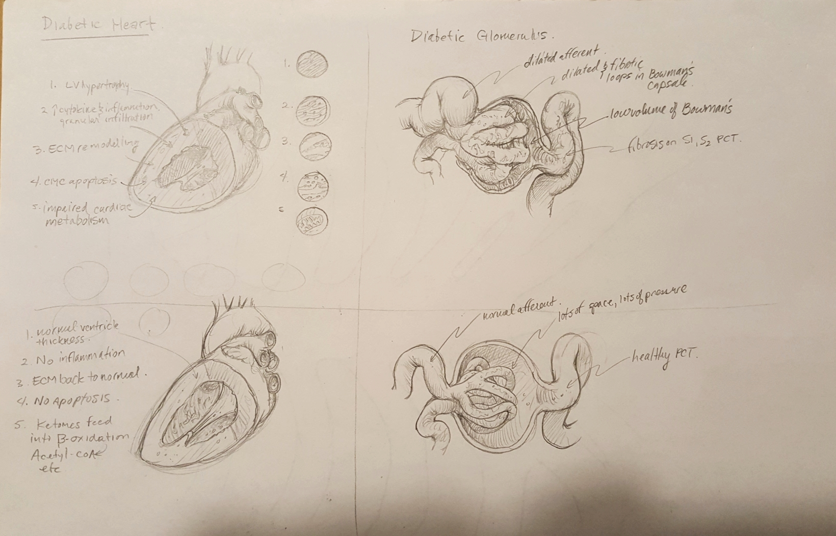 """This was the first sketch of the first image contrasting the diabetic heart and glomerulus. """"Disaster heart and glomerulus"""" at the top, and the heart and glomerulus with NHE inhibitors at work, all the disasterous effects of diabetes slightly ameliorated. The squiggly line notes are just illustration notes of what I'm  trying to show and am usually not able to geven the crudeness of the initial sketch."""