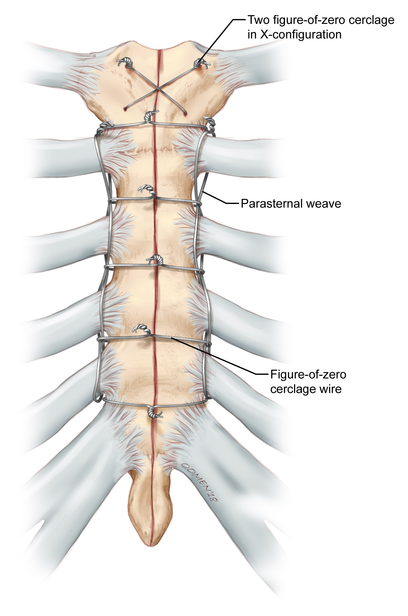 Parasternal wire weave for binding sternum post sternotomy. Copyright 2018 Oomen/Gandhi