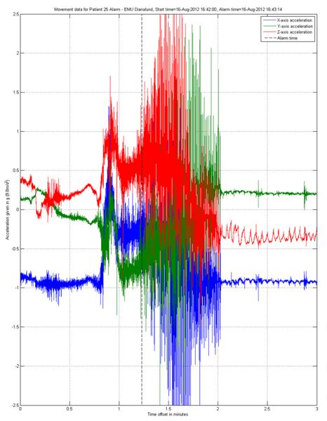 So sieht die Messung eines tonisch-klonischen Anfalls durch die Epi-Care Geräte aus.