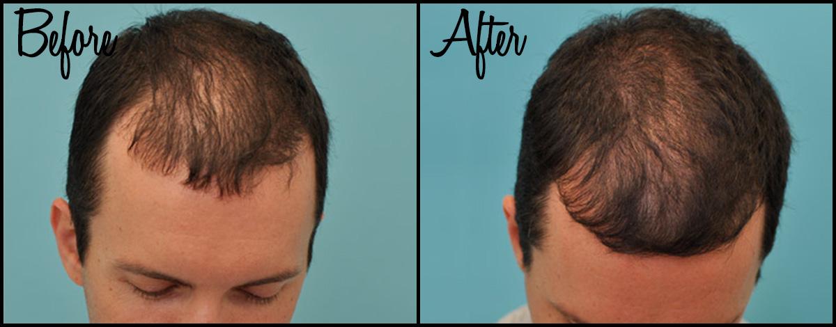 Hair Thinning B&A 01.jpg