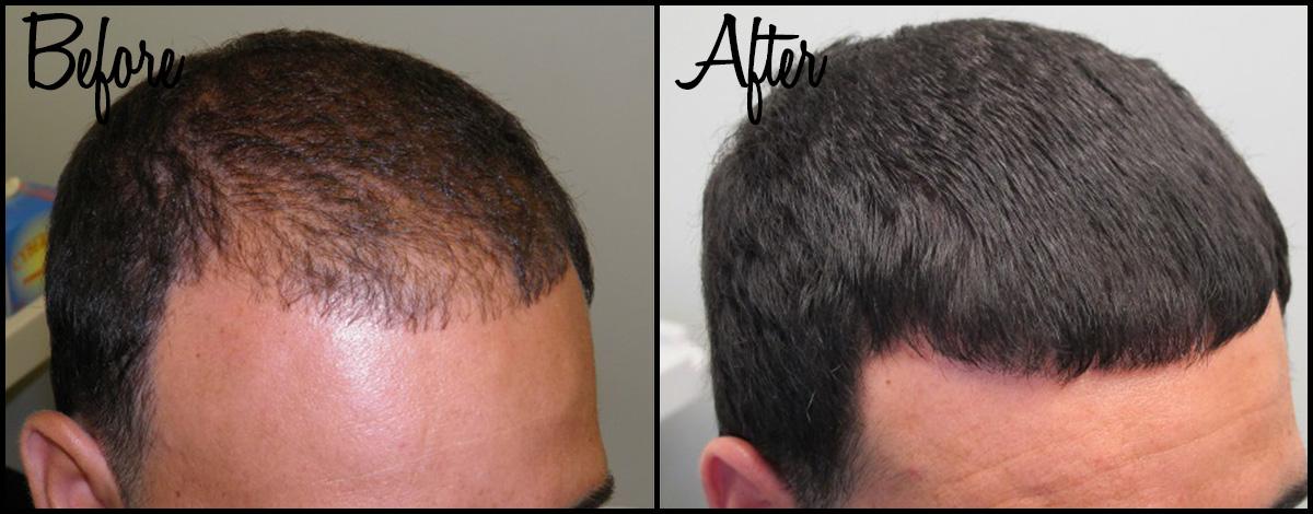 Hair Thinning B&A 03.jpg