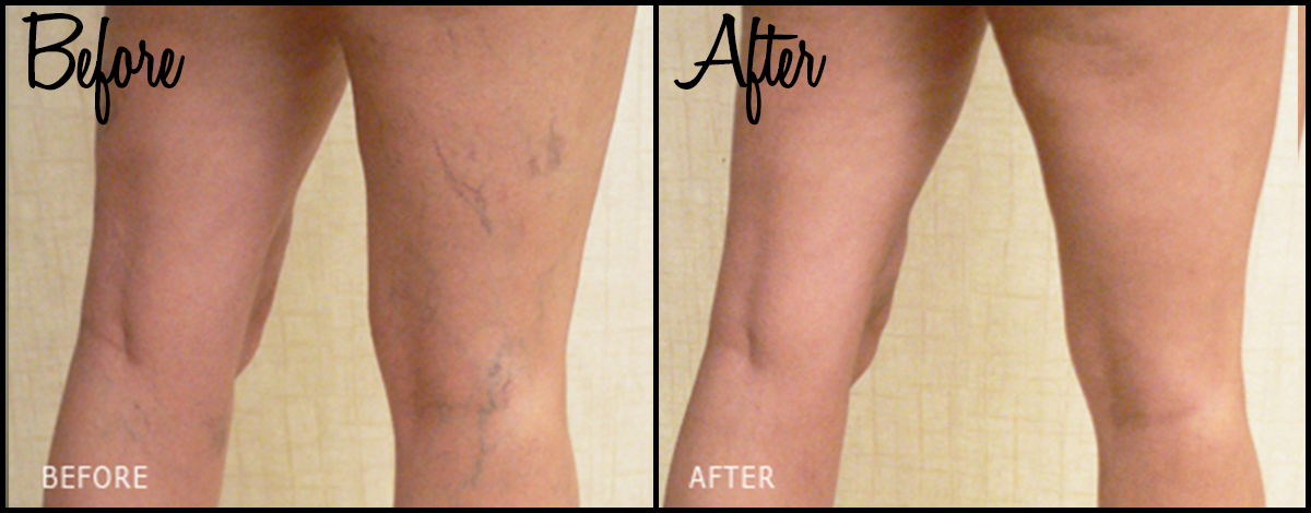 Vein Therapy B&A 01.jpg