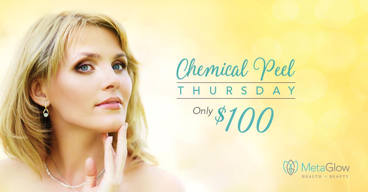 chemical_peel_thursday.jpg