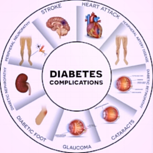bigstock-Diabetes-Complications-guniita-108710849-copy-1024x1024.jpg