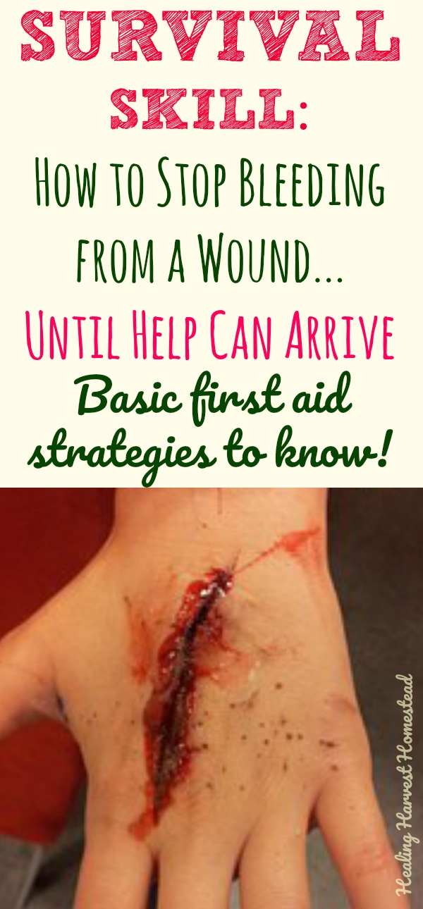 If someone you love got hurt badly and was bleeding profusely, would you know what to do? Find out what kinds of bleeding require immediate medical attention, what to do with a wound that won't stop bleeding, how to know if a person is going into shock, and basic first aid for bleeding wounds. Survival first aid knowledge for gunshots, knife cuts, punctures & more. #bleeding #wound #stop #clot #clotting #stopbleeding #firstaid #survival #skill #survivalskill #gunshot #knife #puncture #basic