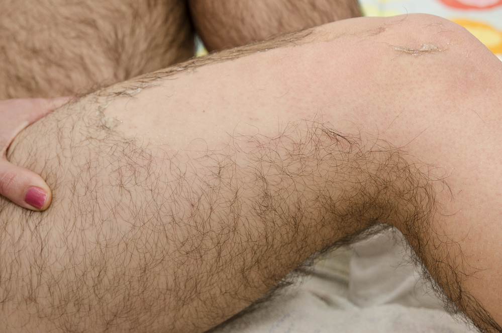 There's going to be a lot of hairiness in a long term disaster!