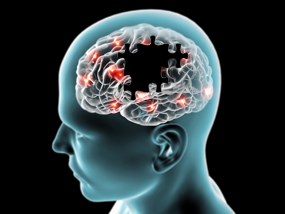 Peak Brain Performance Brielle.jpg