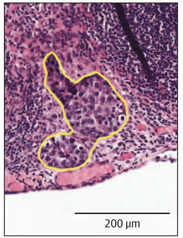 Hand-labeled focus of metastatic breast cancer in lymph node slide.