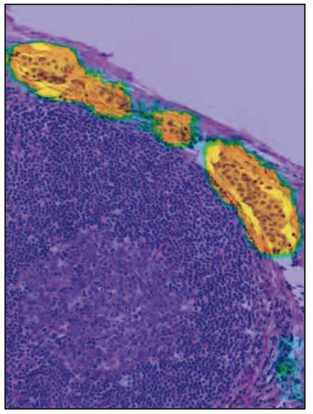 AI-driven highlighting of areas highly suspicious for metastatic cancer.