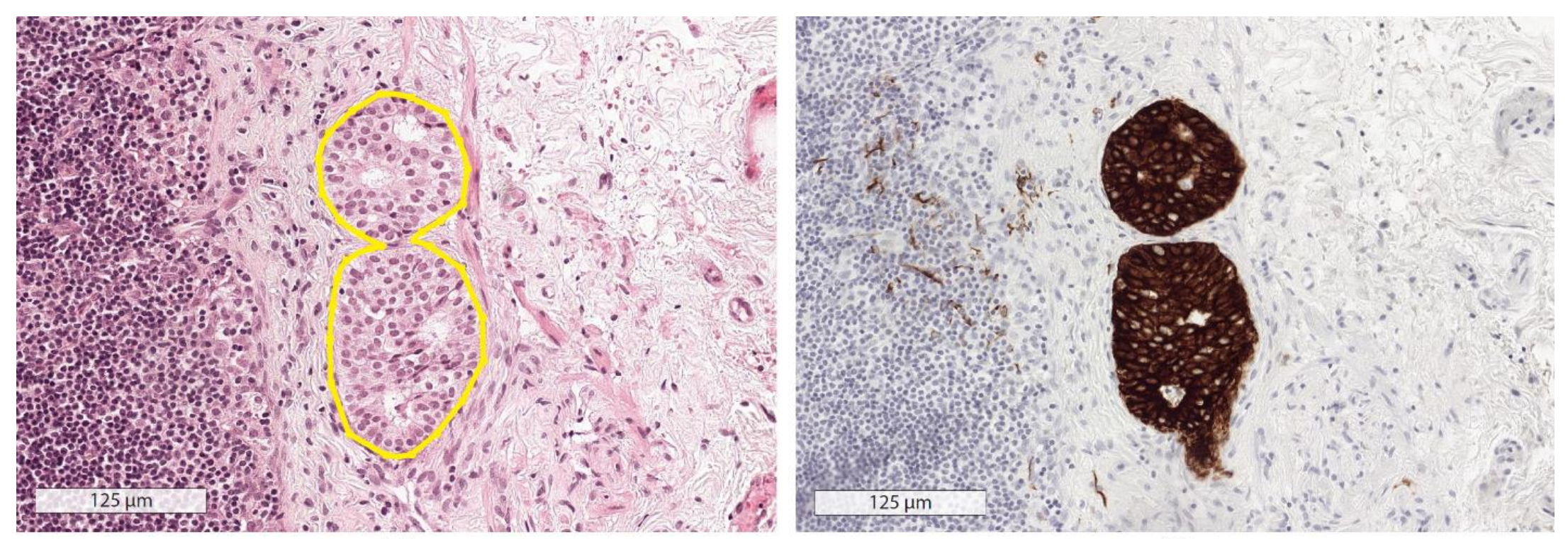"""Left: Hemotoxylin and eosin stain shows area of potential metastatic disease. Right: Immunohistochemical stain gives """"gold standard"""" evidence of metastatic disease. Pathologists and AI agents only had access to H&E images."""