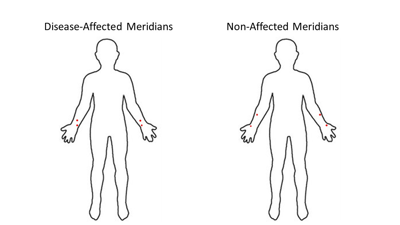 Disease-affected vs. Non-affected Meridians. Pretty similar, wouldn't you say?