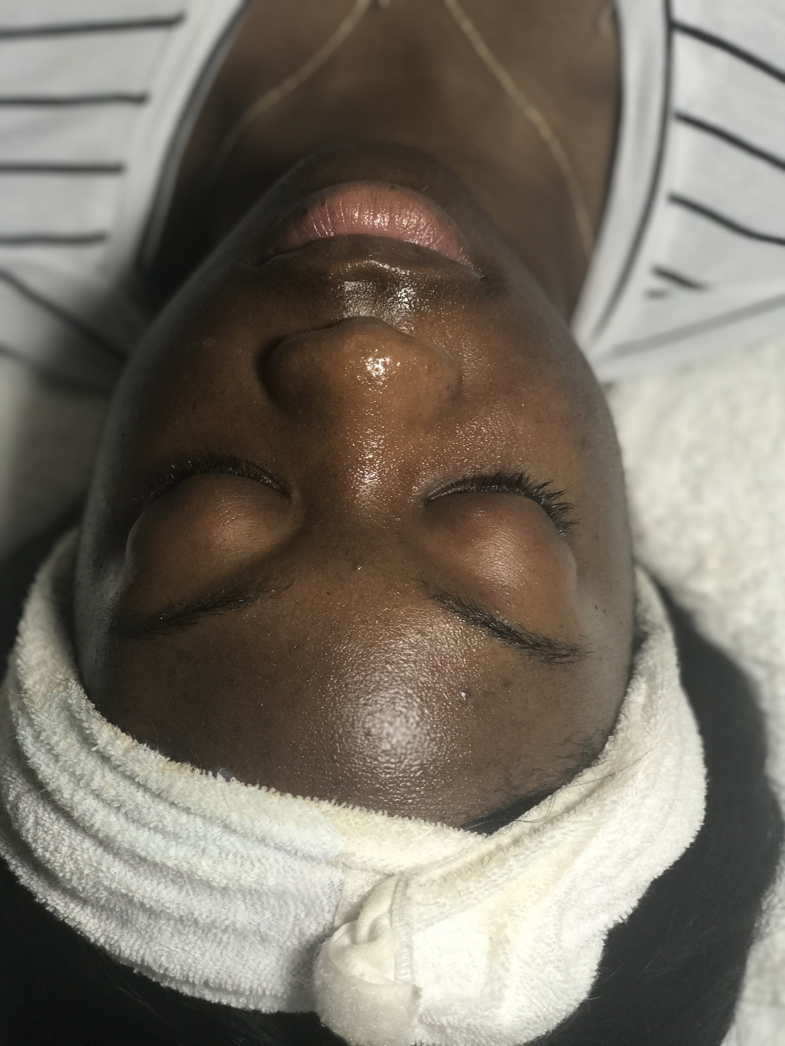 Skin Analysis - 2. A skin analysis was then performed to look for wrinkles, dehydration, sun damage, oils, and hyper-pigmentation. It was found that my skin was combination/dry with oils more so on the nose and chin.