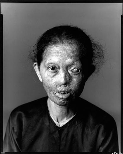 Richard Avedon,  Napalm Victim, Saigon 1971