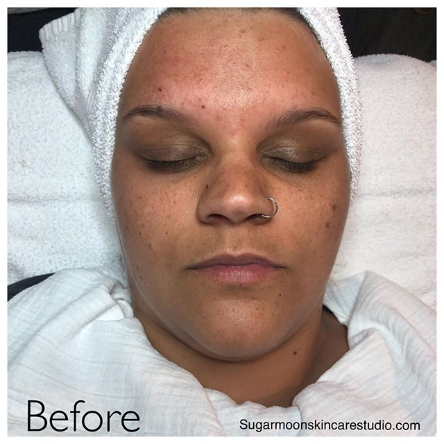 Dermaplane facial with Lactic Acid Peel...beautiful results!  #dermaplaning #lacticacid #chemicalpeel